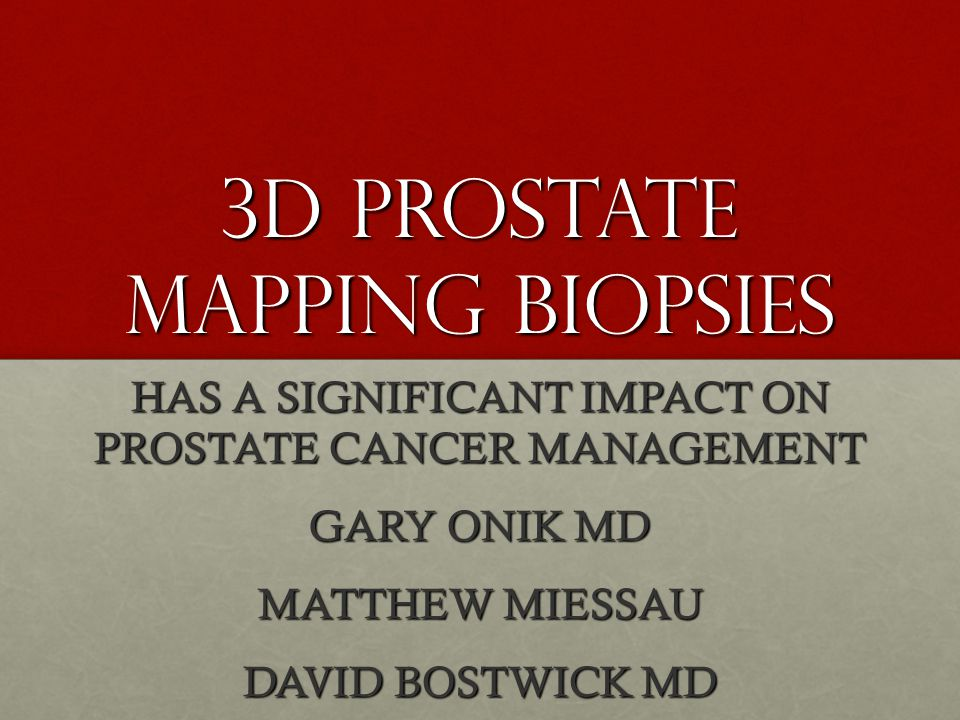 3D Prostate Mapping Biopsies