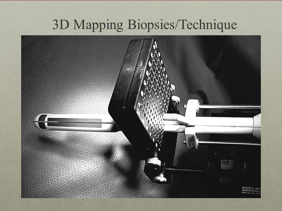 3D Mapping Biopsies/Technique