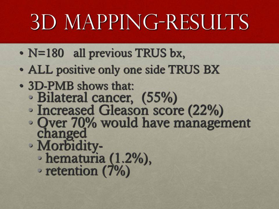 3D Mapping-Results Bilateral cancer, (55%)