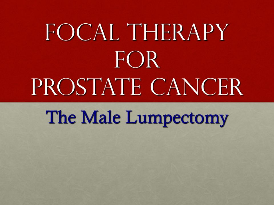 Focal Therapy for Prostate Cancer