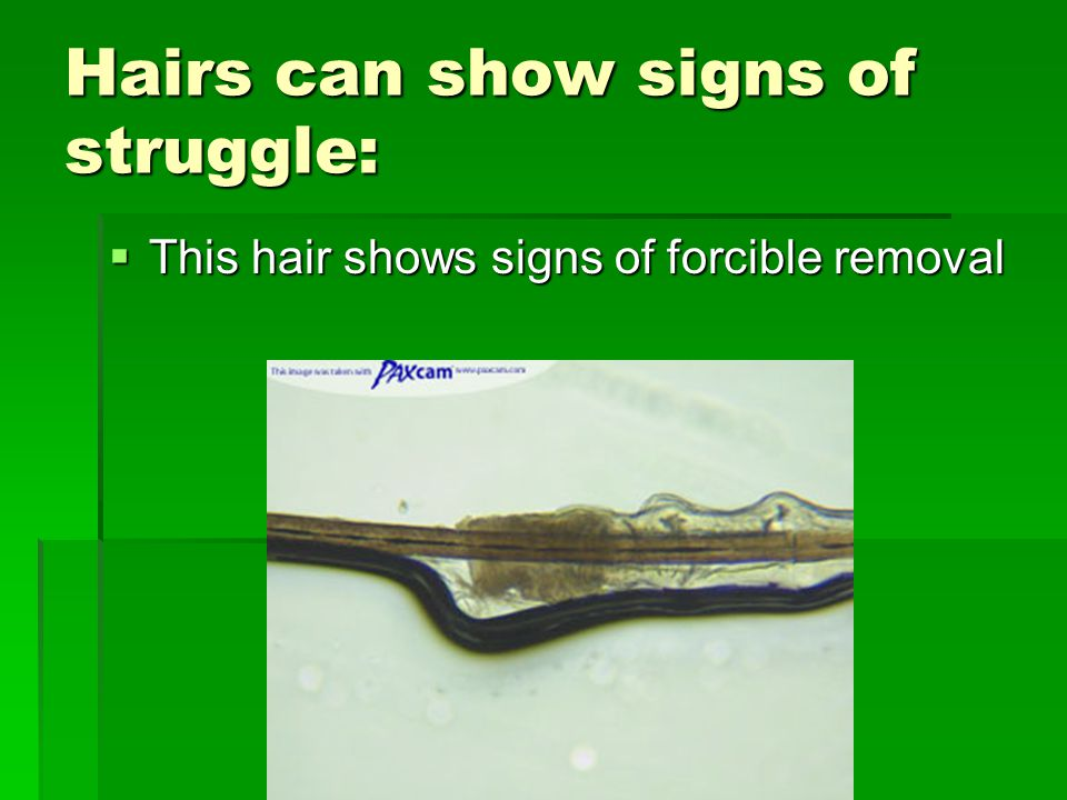 Anatomy Of Hair Ppt Video Online Download