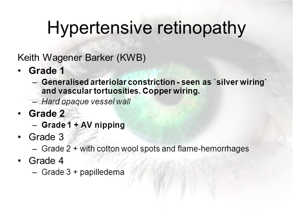 Hypertensive retinopathy  sc 1 st  SlidePlayer : hypertensive retinopathy silver wiring - yogabreezes.com