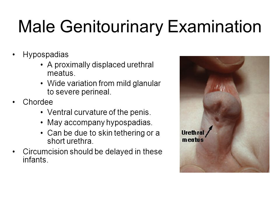 Figure    Appearance after circumcision  A   penis after clamp removal on  day