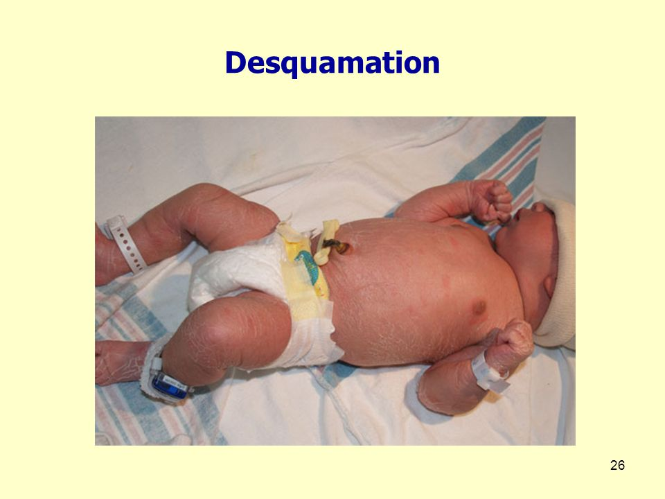 Desquamation