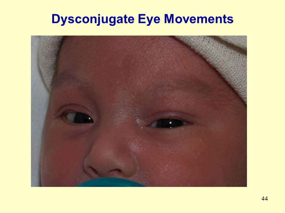 Dysconjugate Eye Movements