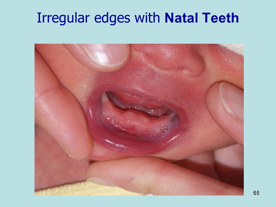 Irregular edges with Natal Teeth