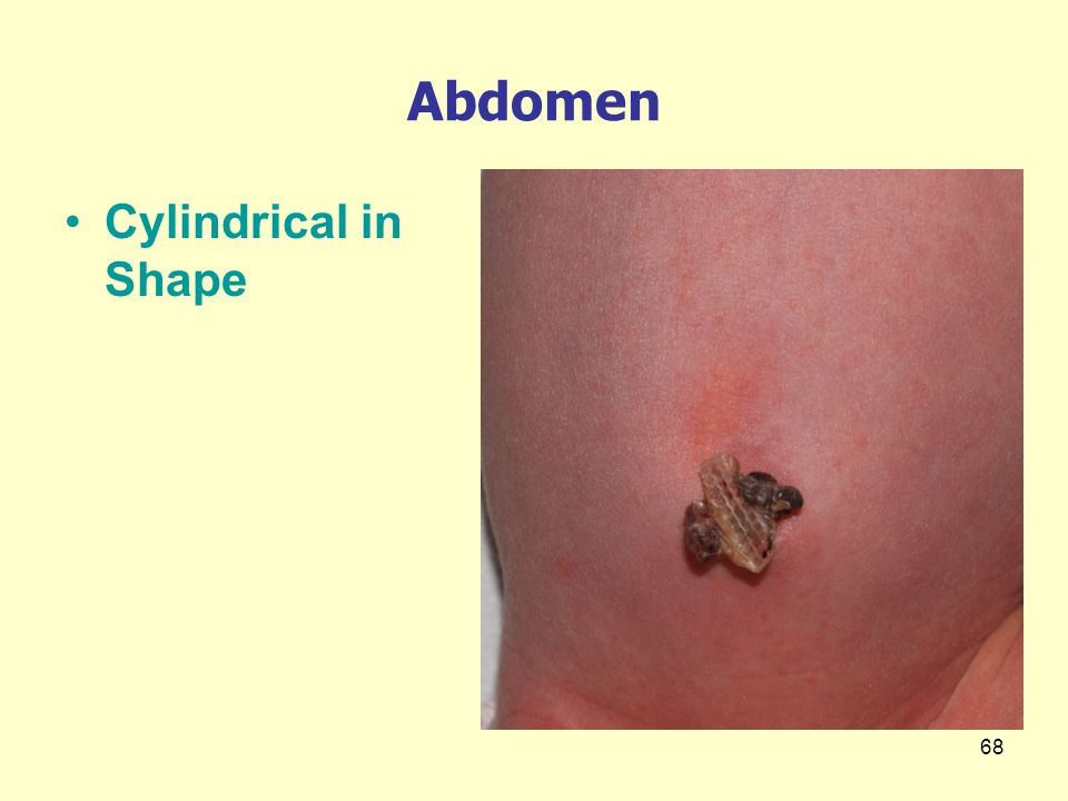 Abdomen Cylindrical in Shape