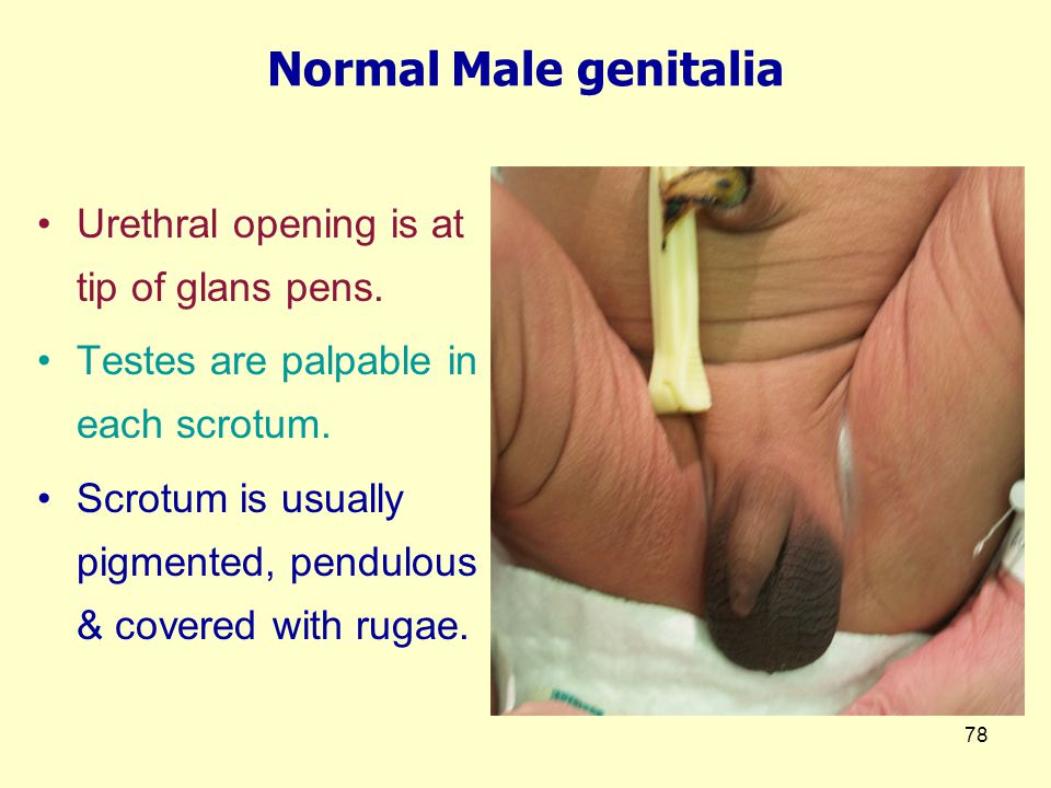 Normal Male genitalia Urethral opening is at tip of glans pens.