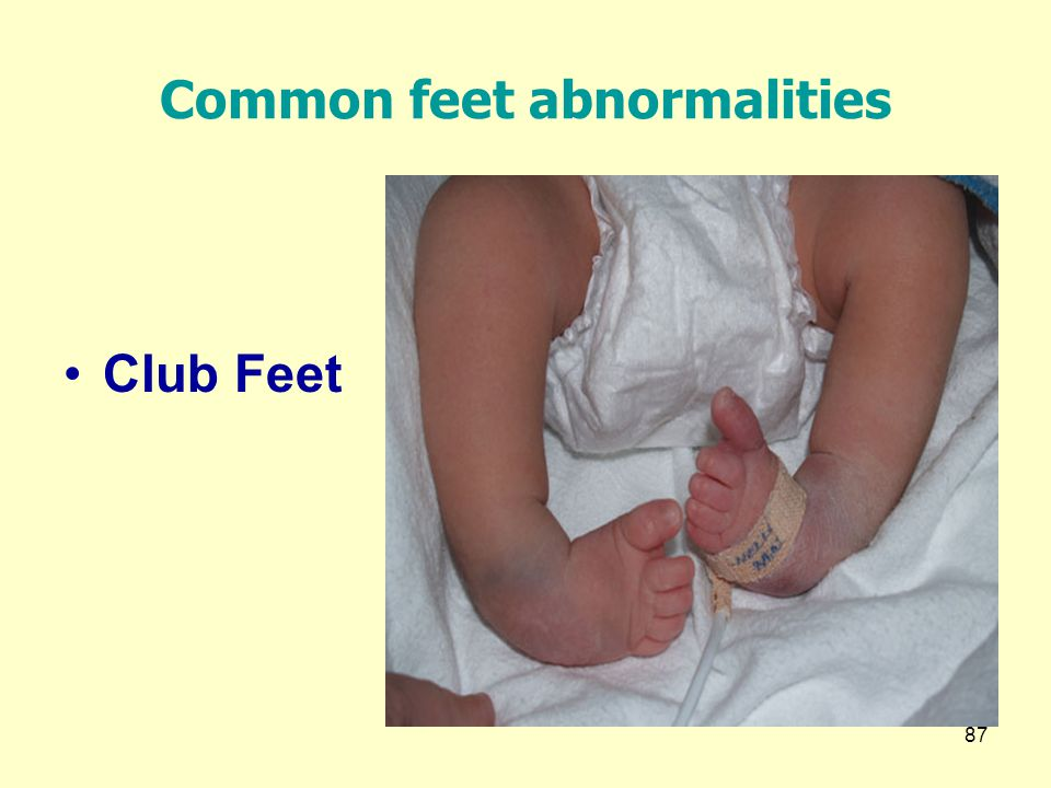 Common feet abnormalities