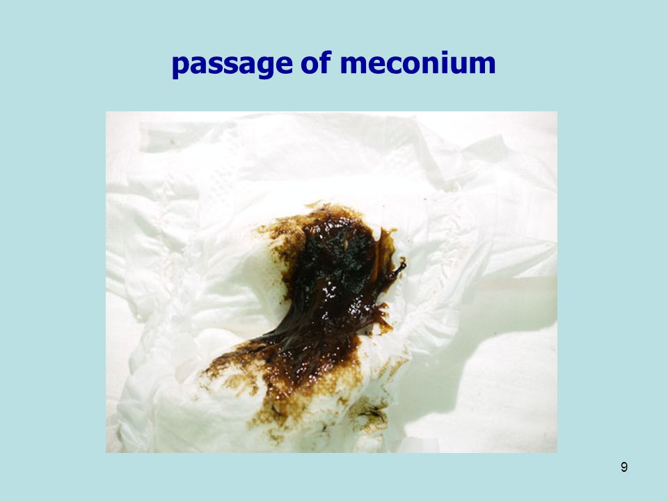 passage of meconium