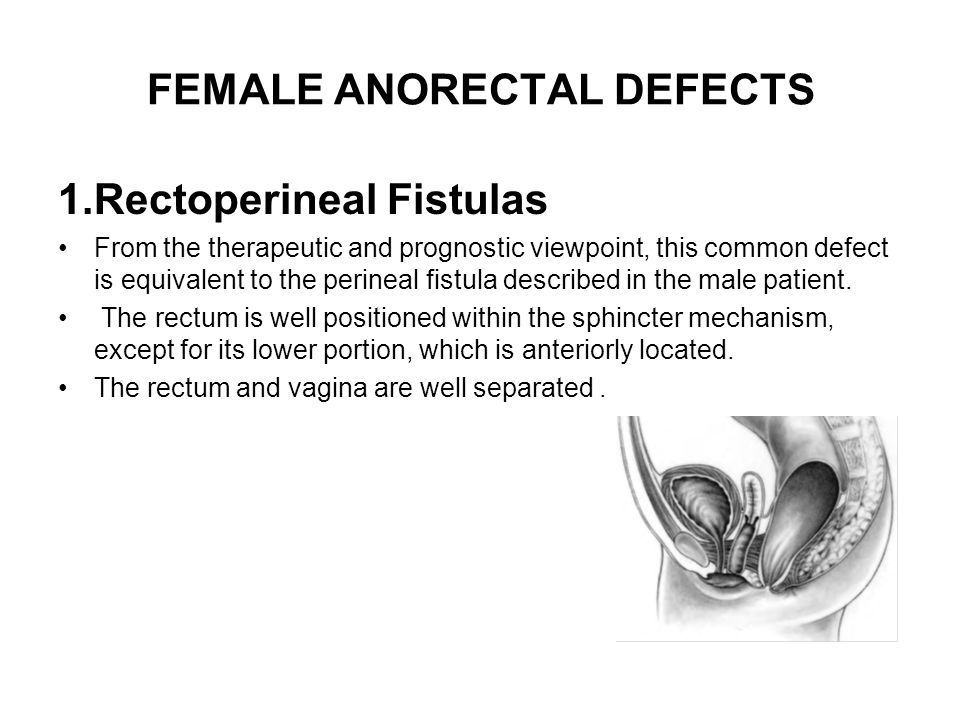 FEMALE ANORECTAL DEFECTS
