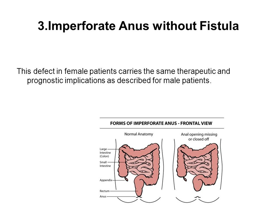 3.Imperforate Anus without Fistula