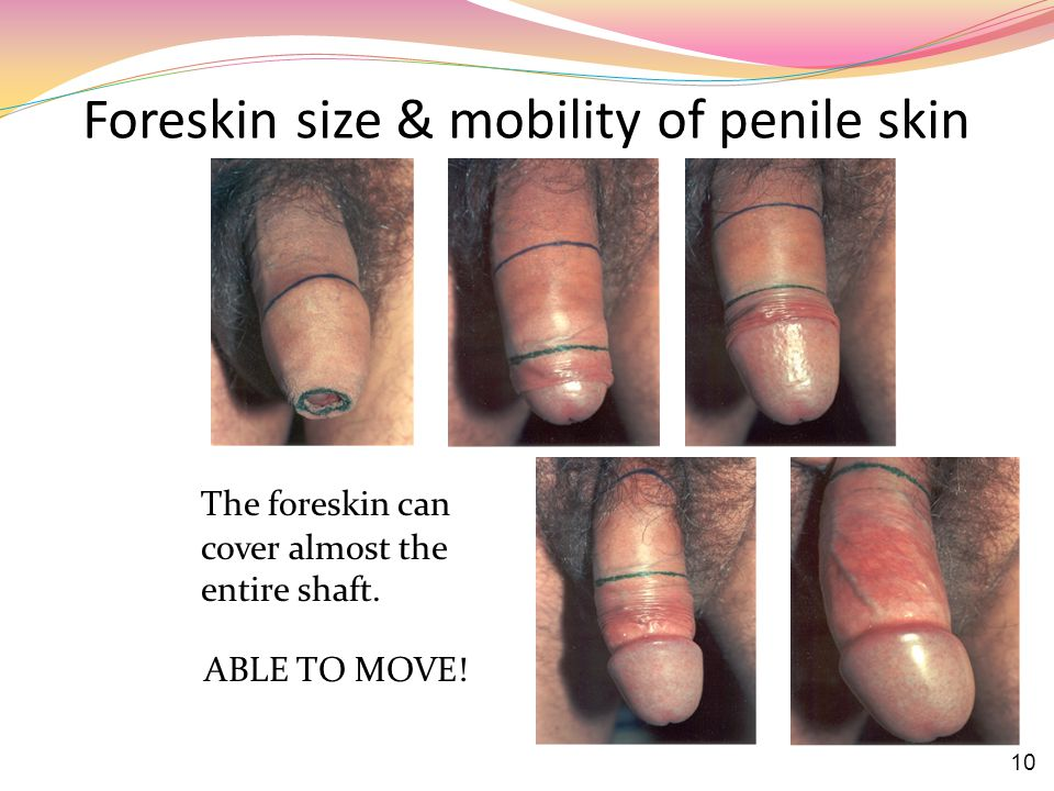 Foreskin size & mobility of penile skin