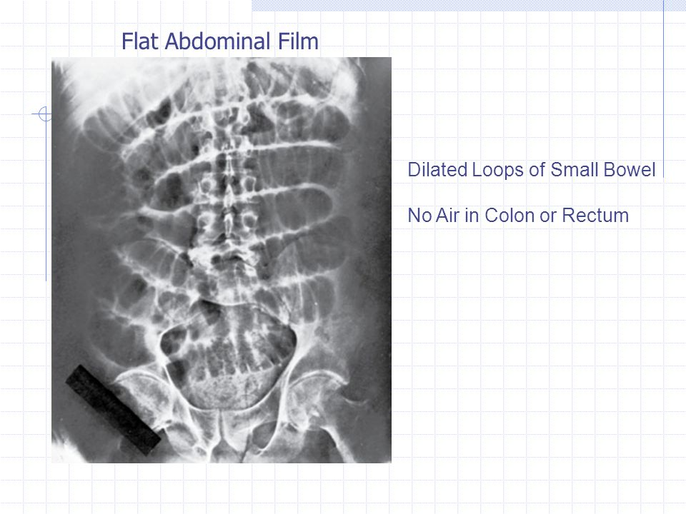 Flat Abdominal Film Dilated Loops of Small Bowel