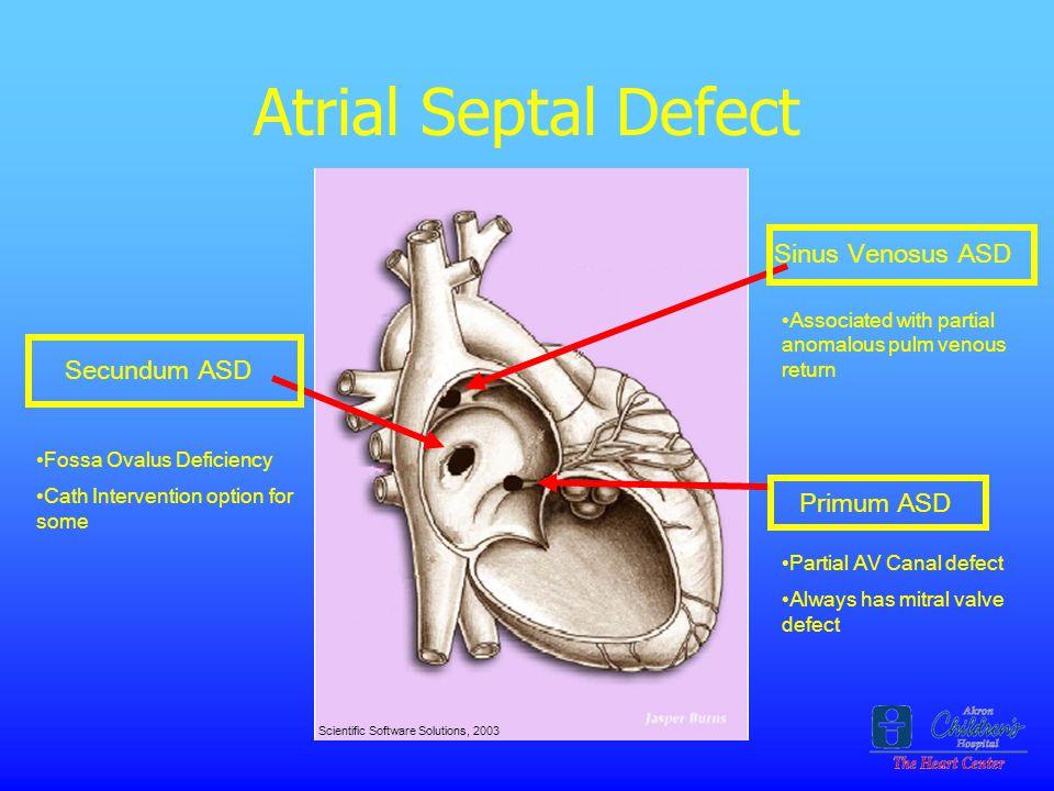 Atrial Septal Defect Sinus Venosus ASD Secundum ASD Primum ASD