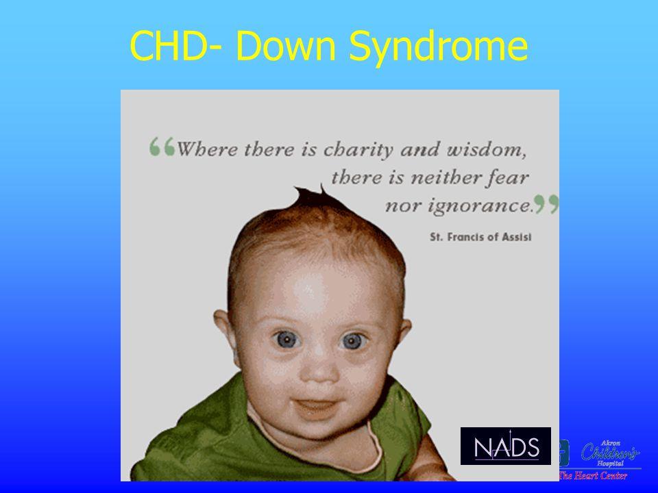 CHD- Down Syndrome