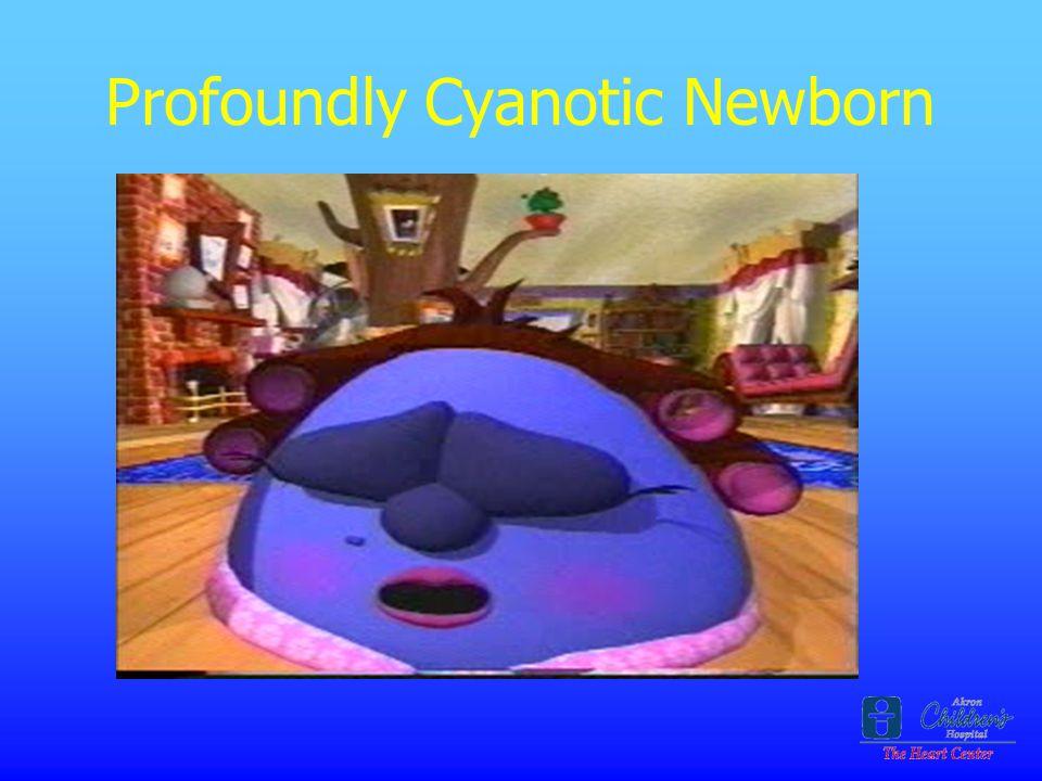 Profoundly Cyanotic Newborn