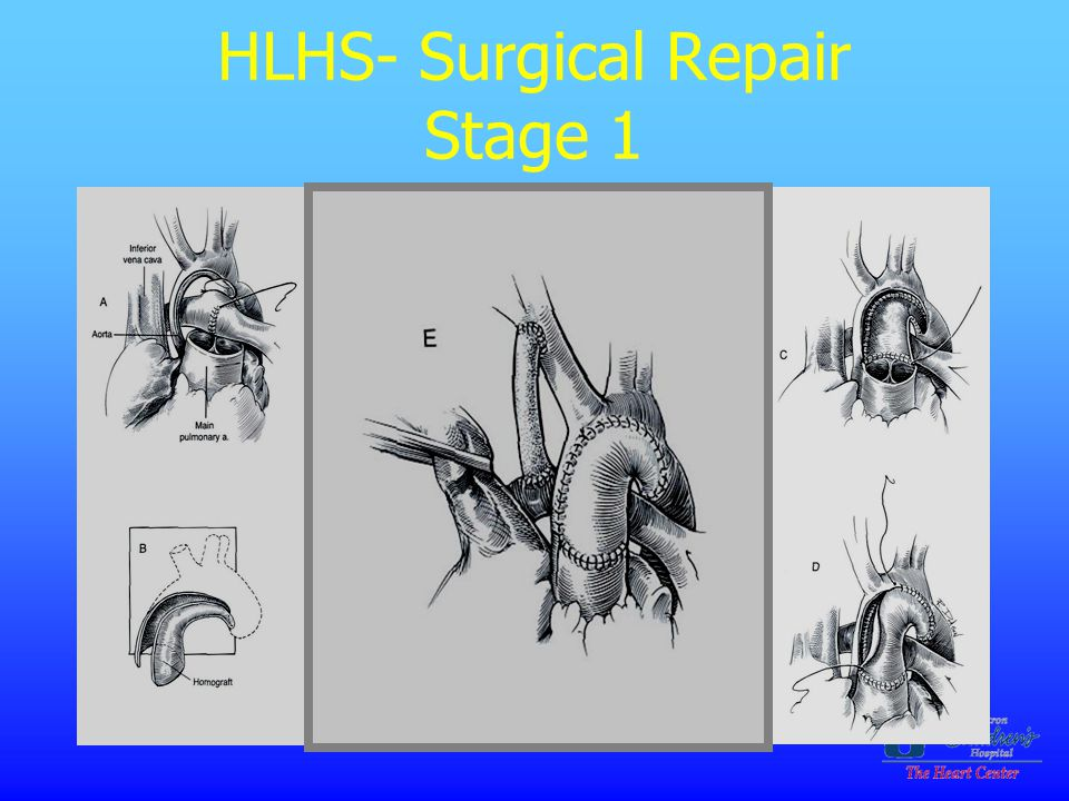 HLHS- Surgical Repair Stage 1