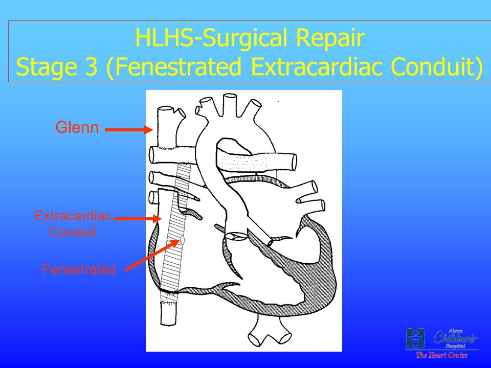 HLHS-Surgical Repair Stage 3 (Fenestrated Extracardiac Conduit)