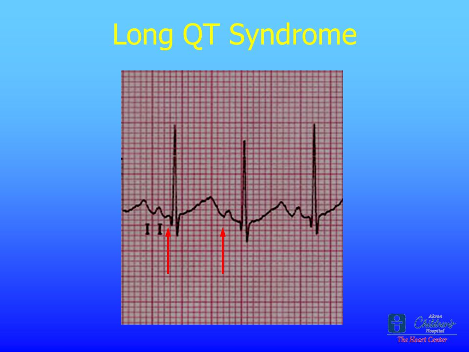 Long QT Syndrome 2