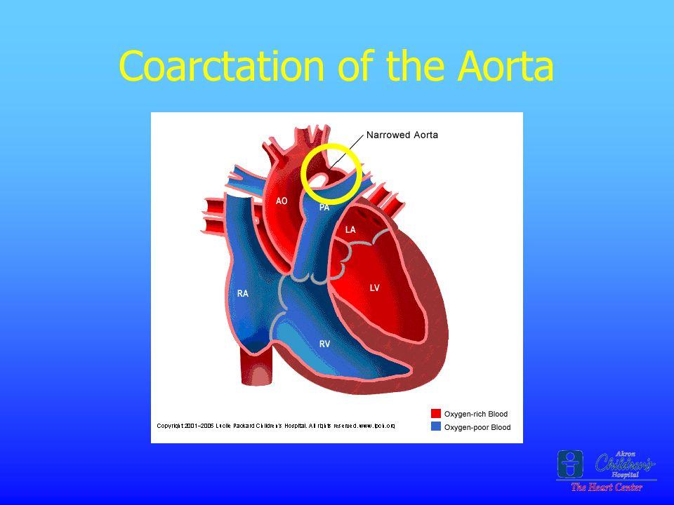 Coarctation of the Aorta