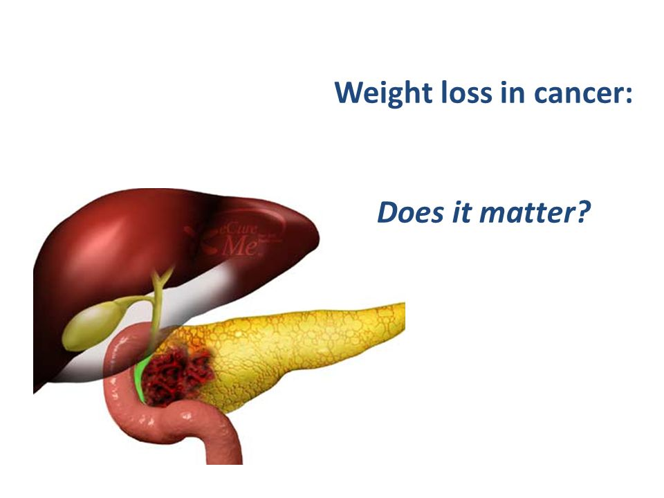 how to stop weight loss in cancer patients
