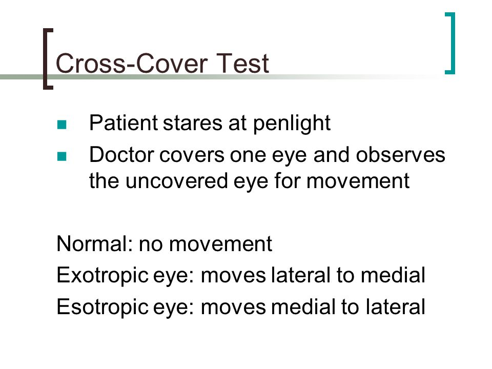 Cross-Cover Test Patient stares at penlight
