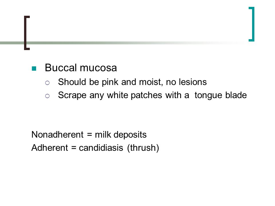 Buccal mucosa Should be pink and moist, no lesions