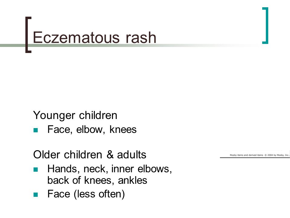 Eczematous rash Younger children Older children & adults