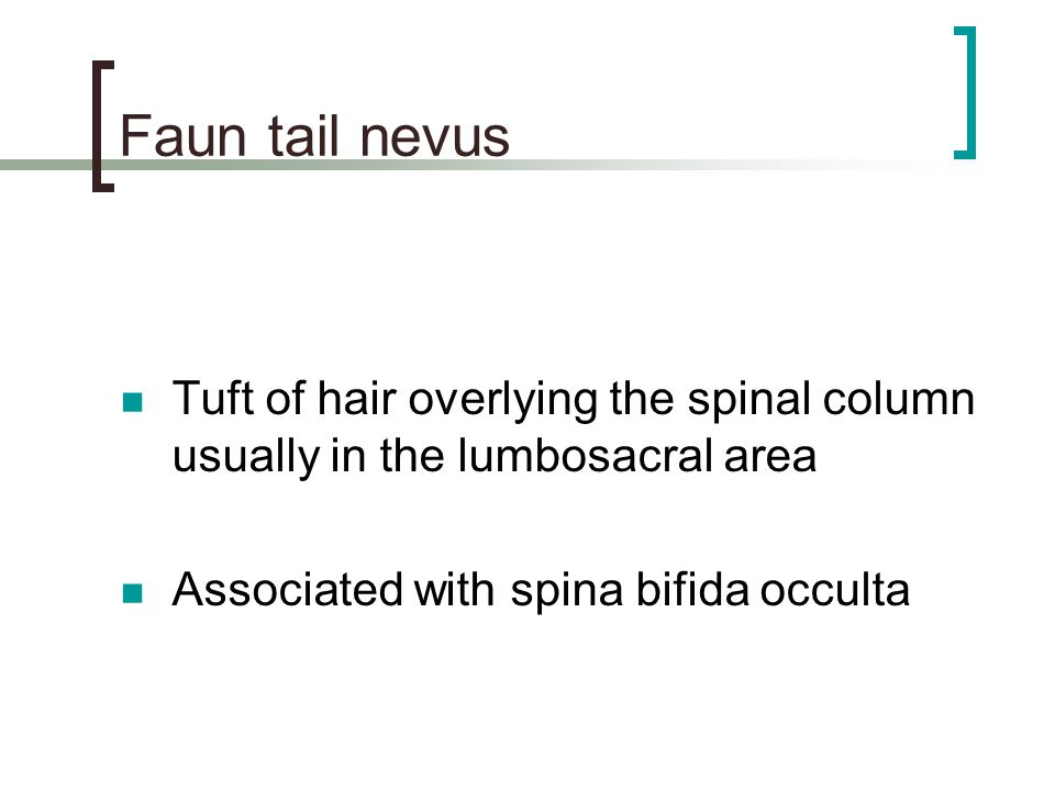 Faun tail nevus Tuft of hair overlying the spinal column usually in the lumbosacral area.