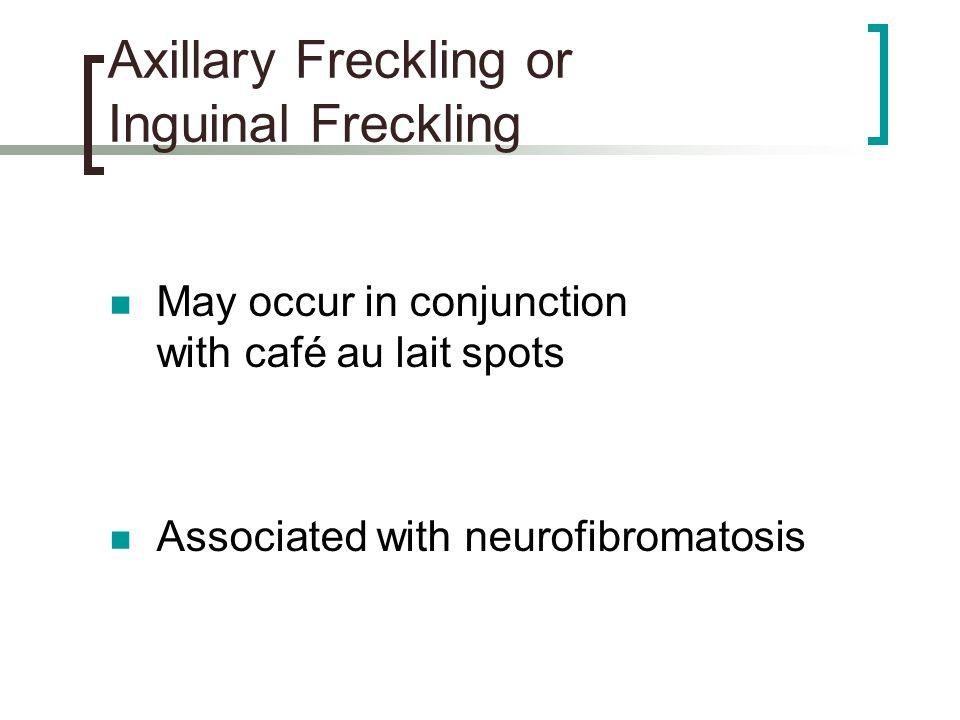 Axillary Freckling or Inguinal Freckling