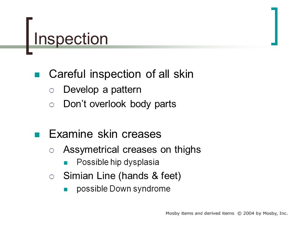 Inspection Careful inspection of all skin Examine skin creases