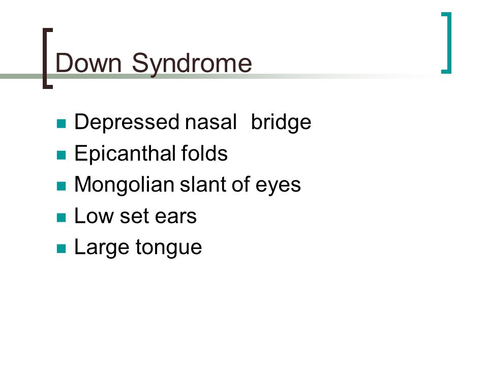 Down Syndrome Depressed nasal bridge Epicanthal folds