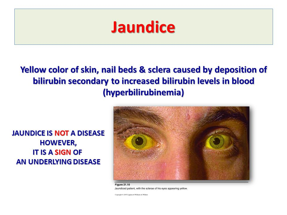 JAUNDICE IS NOT A DISEASE