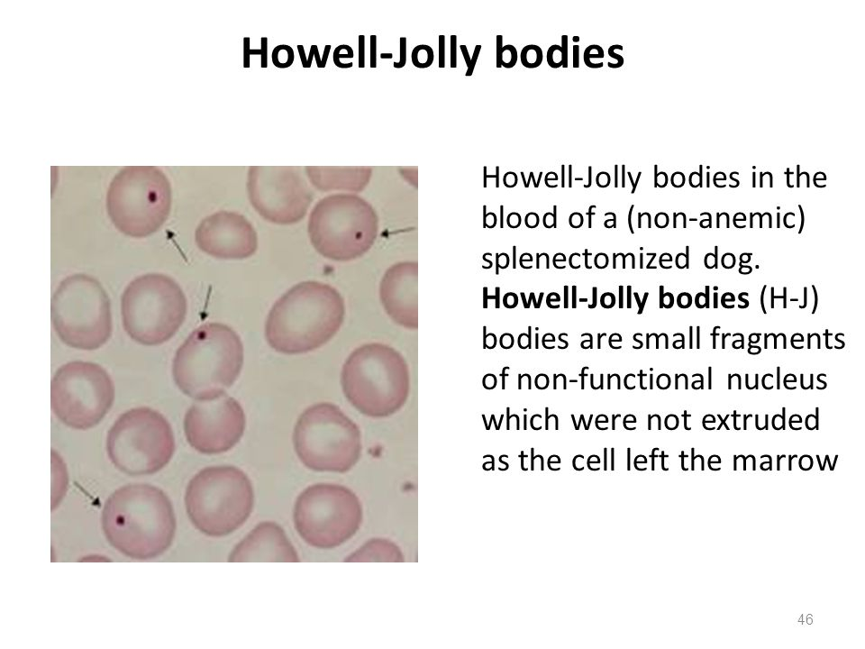 howell jolly bodies in rbc