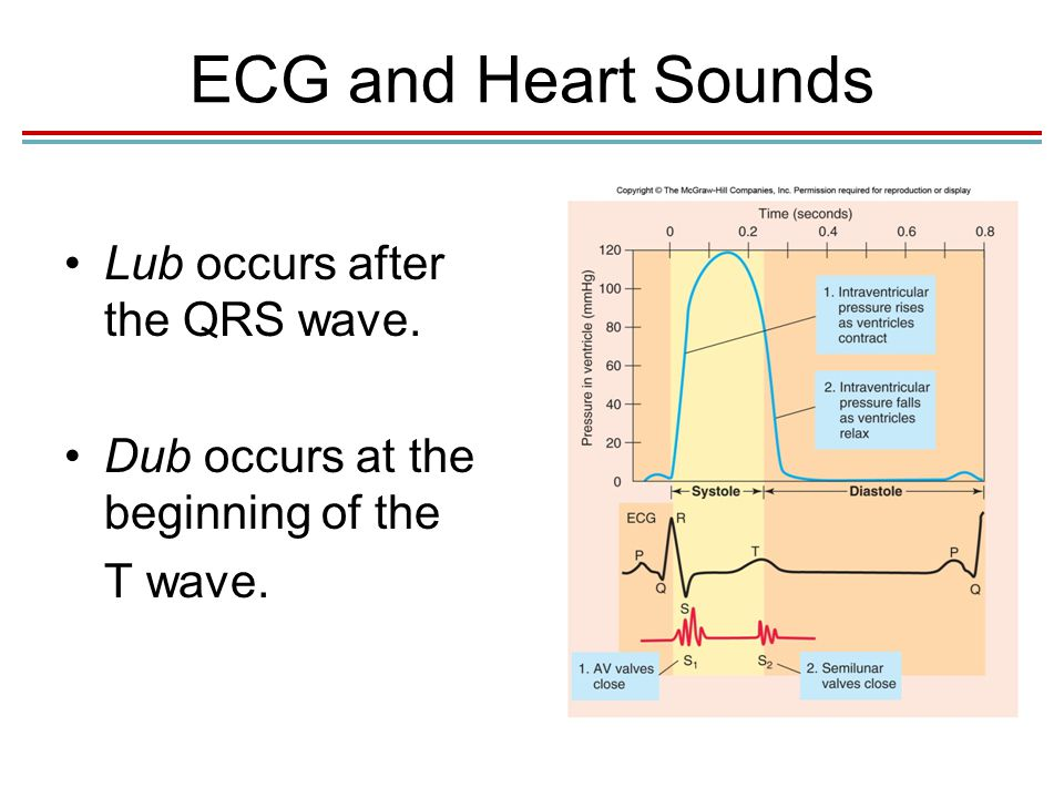 lub dub sound in heart What is a heart murmur you know the sound of your heartbeat: lub-dub, lub-dub in some people, the blood makes an extra noise as it flows through the heart.