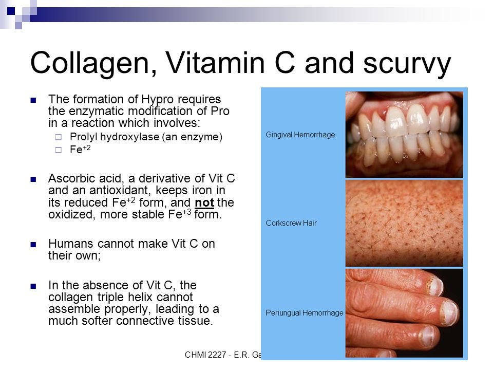 Making History With Vitamin C Powerpoint: CHMI 2227E Biochemistry I Proteins: Secondary Structure