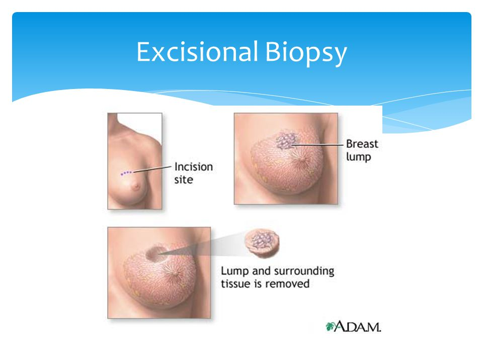 assessment breast forms biopsy