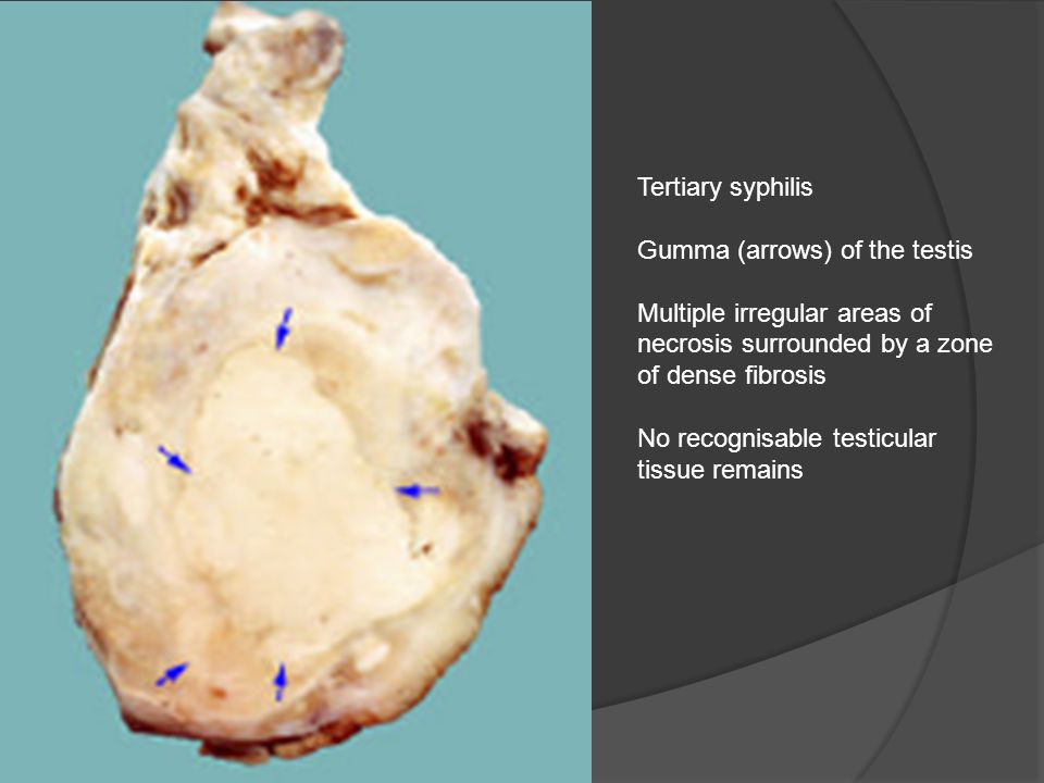 Tertiary syphilis Gumma (arrows) of the testis. Multiple irregular areas of necrosis surrounded by a zone of dense fibrosis.