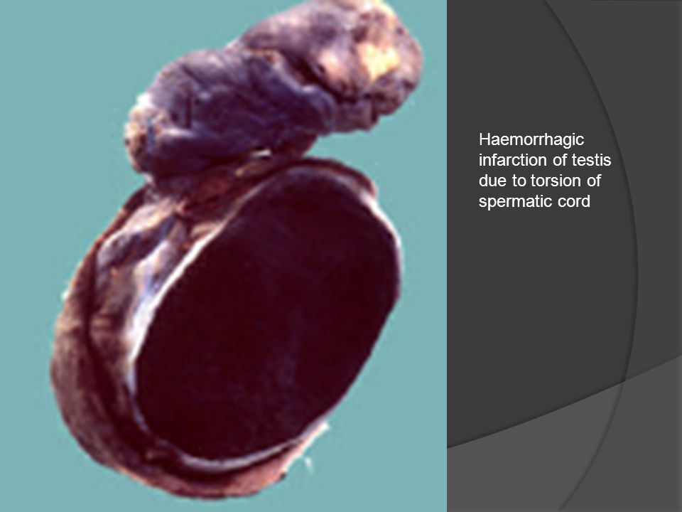 Haemorrhagic infarction of testis due to torsion of spermatic cord