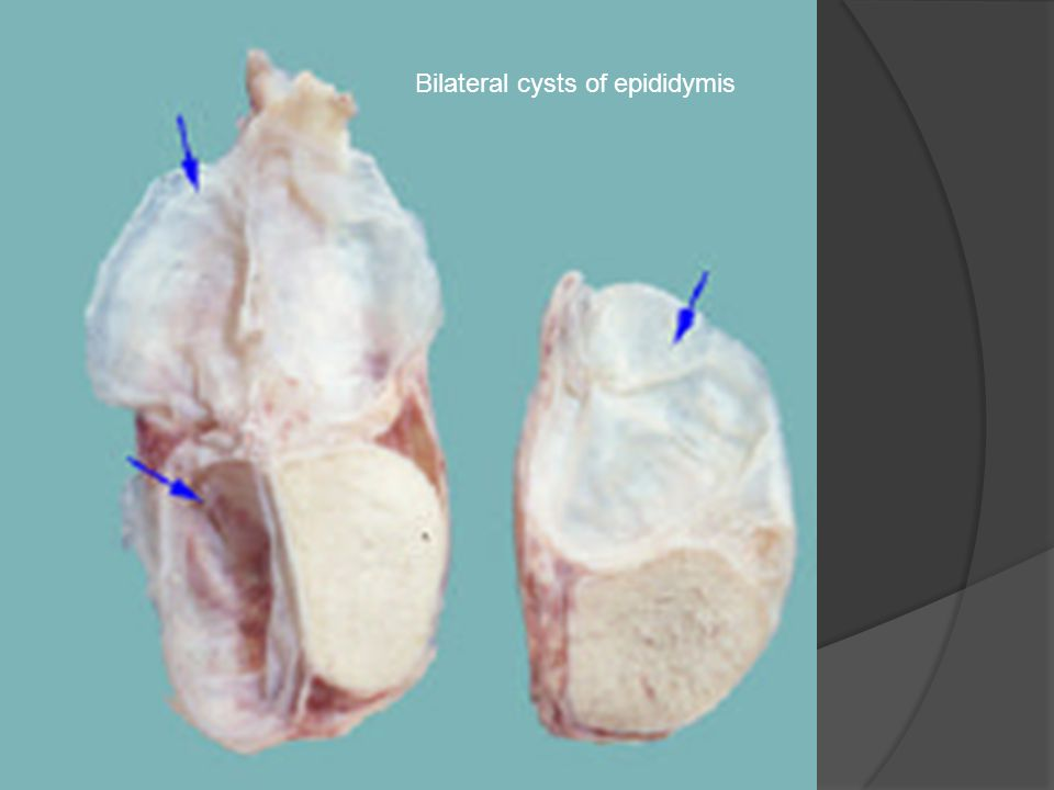 Bilateral cysts of epididymis