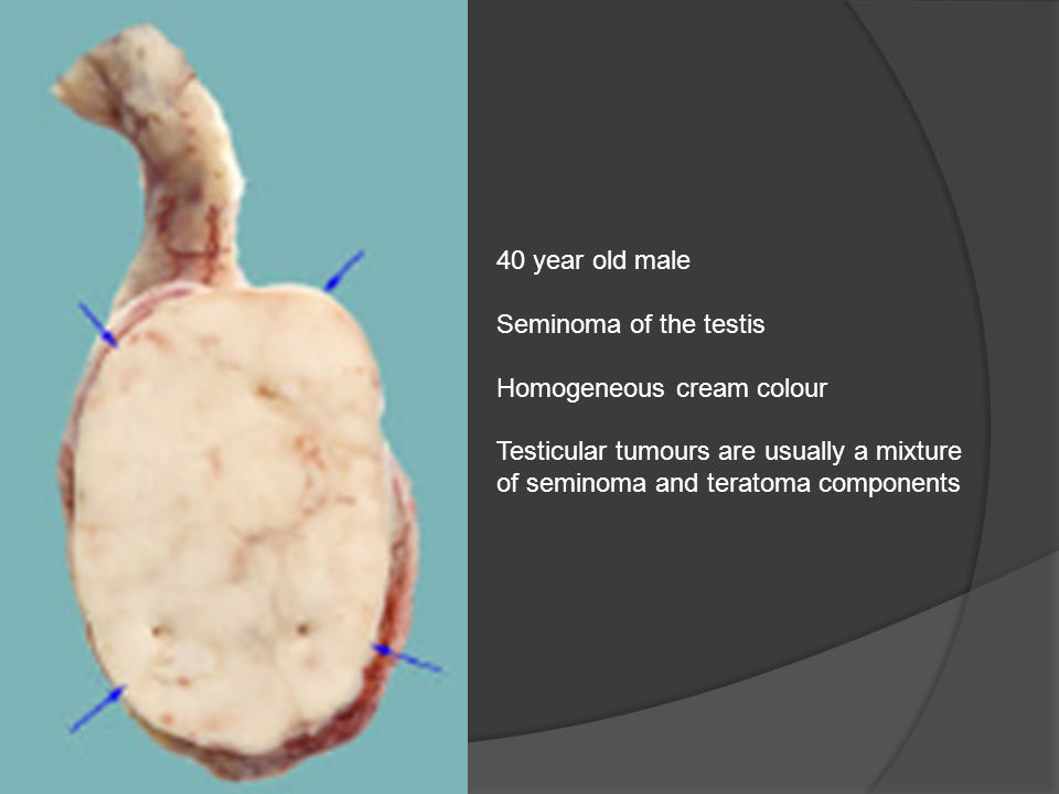 40 year old male Seminoma of the testis. Homogeneous cream colour.