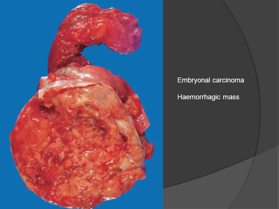 Embryonal carcinoma Haemorrhagic mass