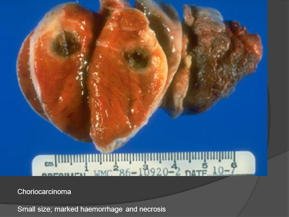 Choriocarcinoma Small size; marked haemorrhage and necrosis
