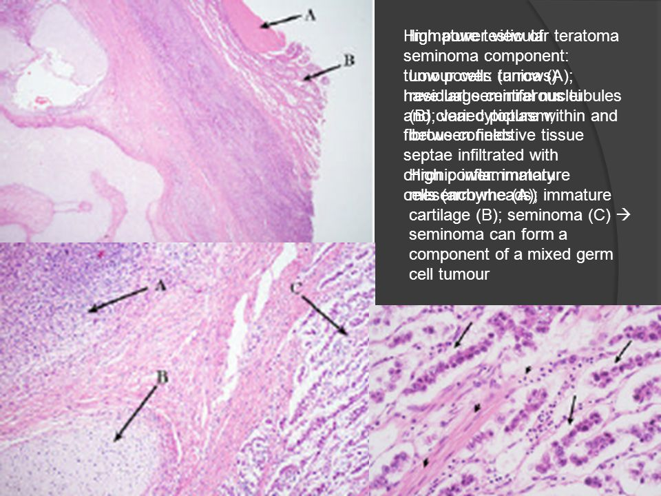 High power view of seminoma component: tumour cells (arrows) have large central nuclei and clear cytoplasm; fibrous connective tissue septae infiltrated with chronic inflammatory cells (arrowheads)