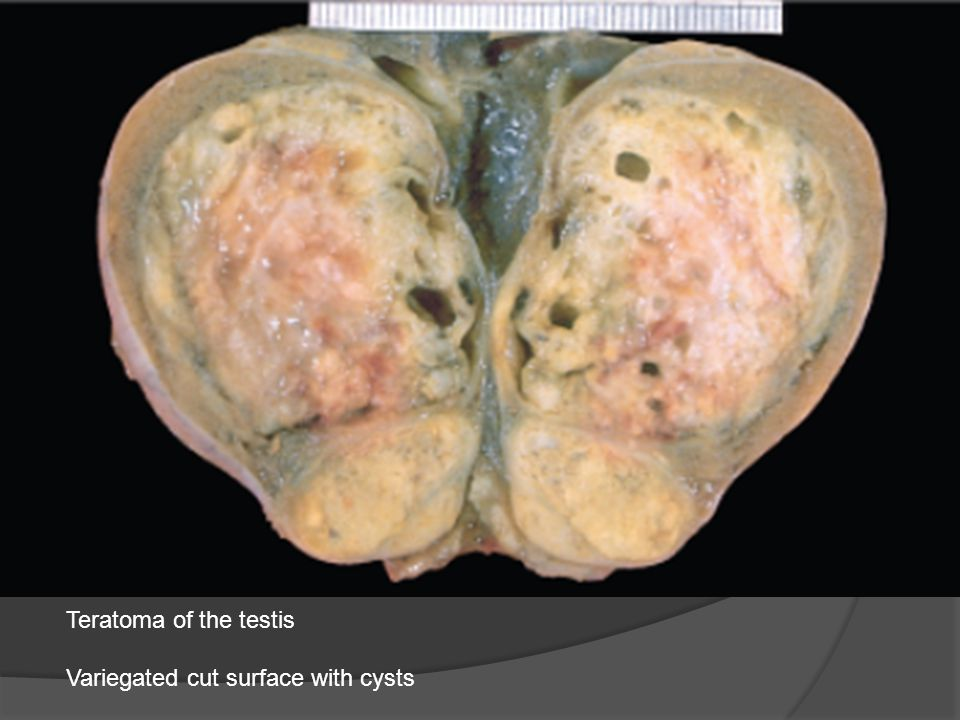 Teratoma of the testis Variegated cut surface with cysts