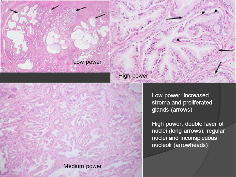 Low power High power. Low power: increased stroma and proliferated glands (arrows)