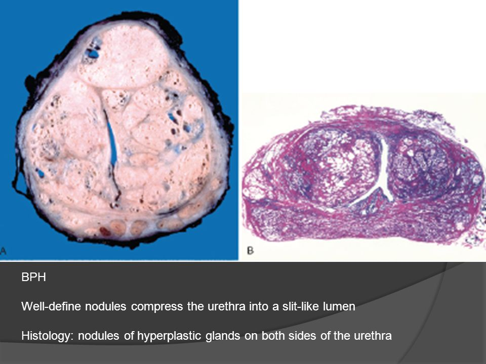 BPH Well-define nodules compress the urethra into a slit-like lumen.
