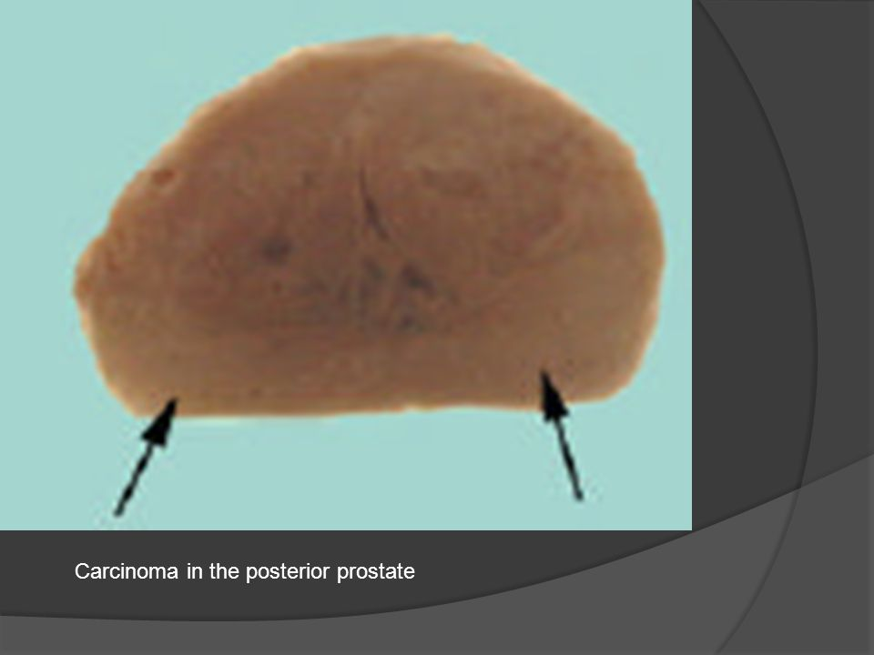 Carcinoma in the posterior prostate