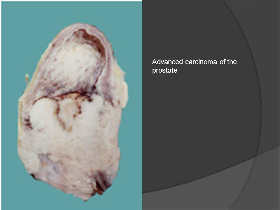 Advanced carcinoma of the prostate